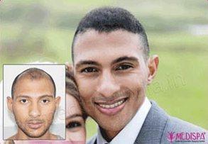 Hair Transplant in Africans