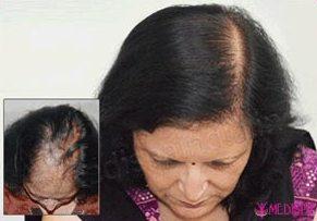 Female Hair Clinic