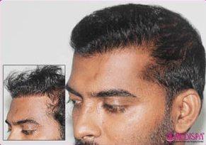 Failed* Hair Transplant Repair