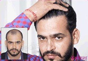 Medispa Male Hair Transplant
